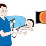 胃カメラ内視鏡検査イラスト